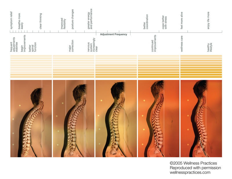 Levels of Care - Simply Chiropractic