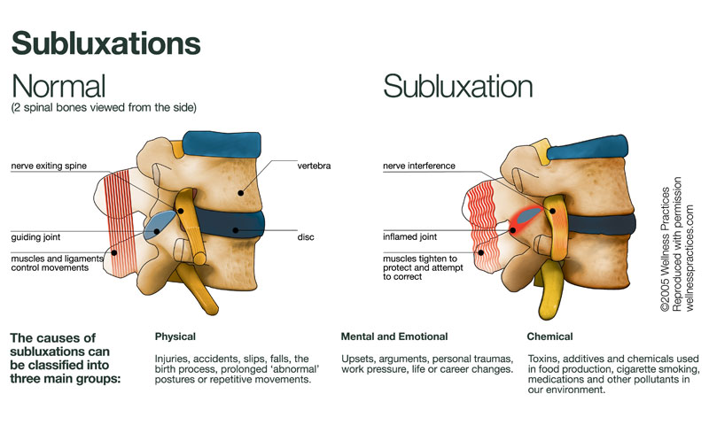 Subluxations - Simply Chiropractic